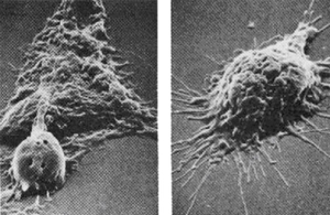 Natural Immune System Devouring A Cancer Cell